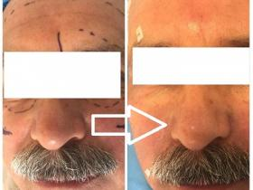 قبل و بعد از جوانسازی صورت